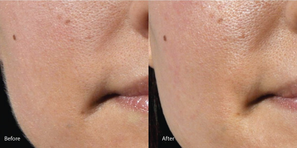 Results of Dermaplaning procedure